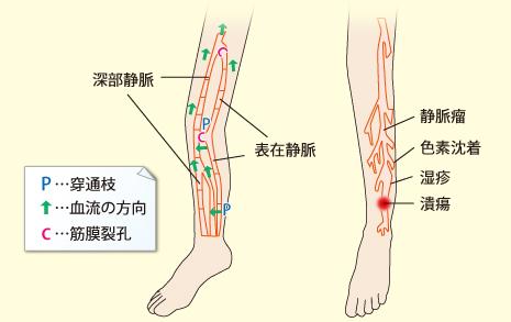 下肢静脈瘤の説明画像